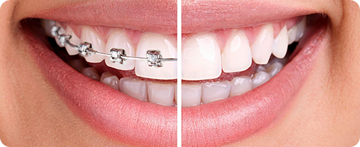 denti tour before-after